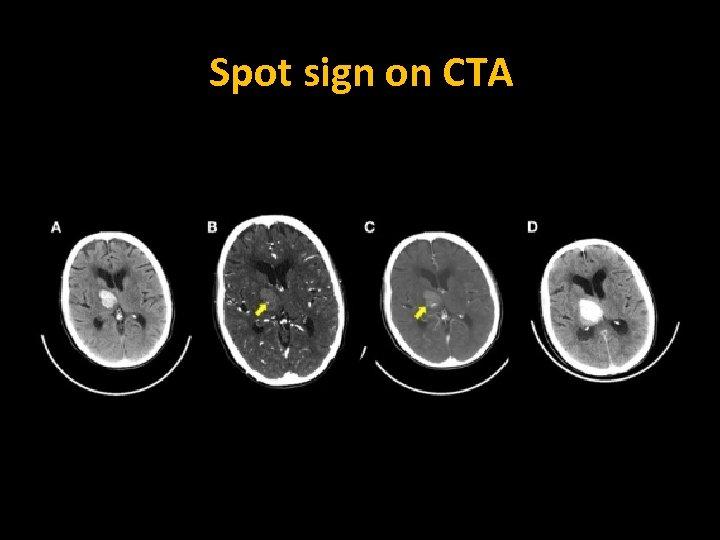 Spot sign on CTA Initial CT and CTA Immediate post-CTA 6 -hr CT