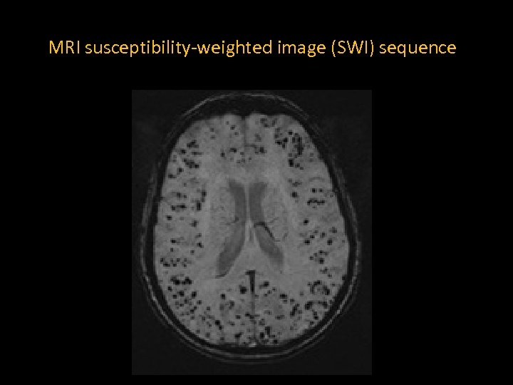 MRI susceptibility-weighted image (SWI) sequence