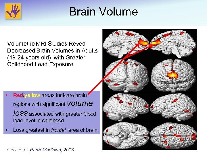 Brain Volumetric MRI Studies Reveal Decreased Brain Volumes in Adults (19 -24 years old)