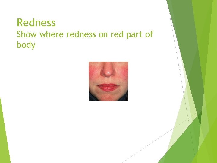 Redness Show where redness on red part of body