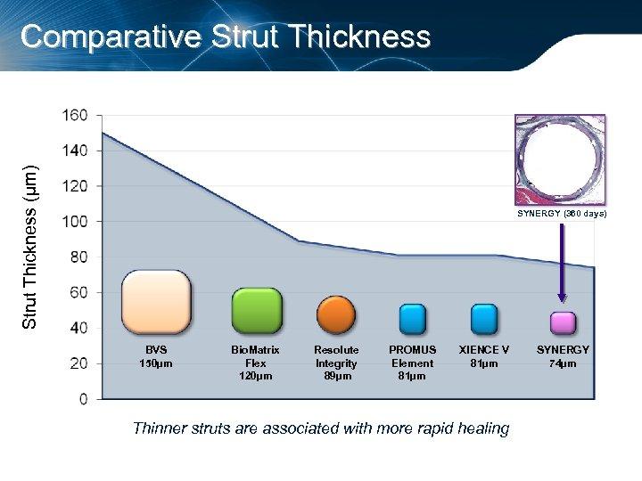 Strut Thickness (µm) Comparative Strut Thickness SYNERGY (360 days) BVS 150µm Bio. Matrix Flex