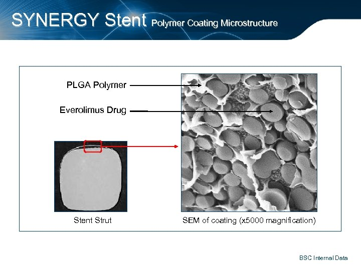 SYNERGY Stent Polymer Coating Microstructure PLGA Polymer Everolimus Drug Stent Strut SEM of coating