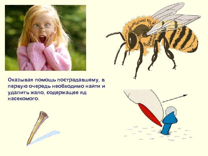 Оказывая помощь пострадавшему, в первую очередь необходимо найти и удалить жало, содержащее яд насекомого.