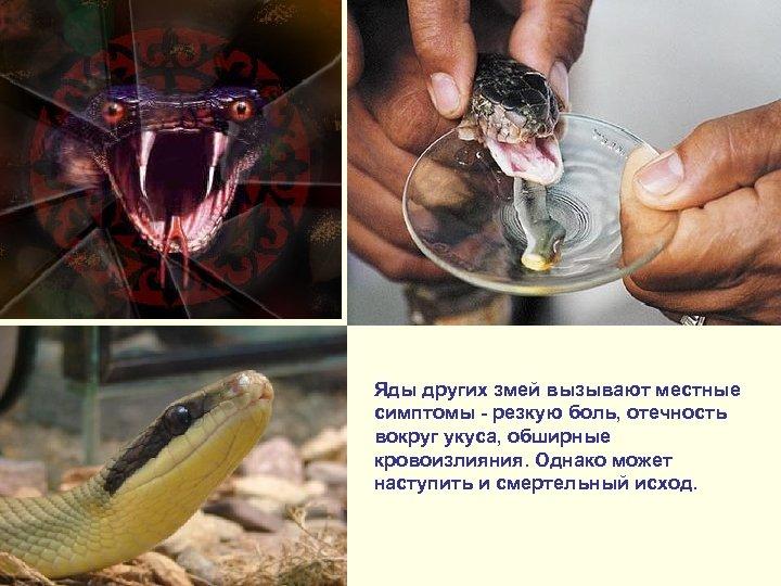 Яды других змей вызывают местные симптомы - резкую боль, отечность вокруг укуса, обширные кровоизлияния.