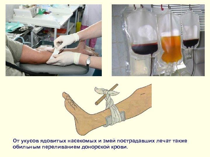 От укусов ядовитых насекомых и змей пострадавших лечат также обильным переливанием донорской крови.