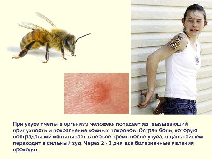 При укусе пчелы в организм человека попадает яд, вызывающий припухлость и покраснение кожных покровов.