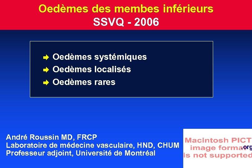 Oedèmes des membes inférieurs SSVQ - 2006 è è è Oedèmes systémiques Oedèmes localisés