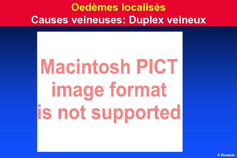Oedèmes localisés Causes veineuses: Duplex veineux A Roussin