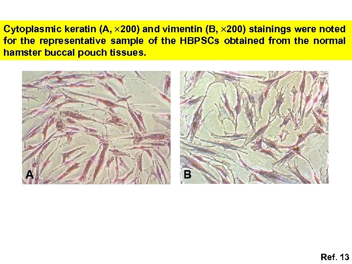 Cytoplasmic keratin (A, 200) and vimentin (B, 200) stainings were noted for the representative