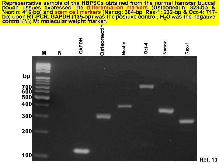 Rex-1 Nanog Oct-4 Nestin N Osteonectin M GAPDH Representative sample of the HBPSCs obtained