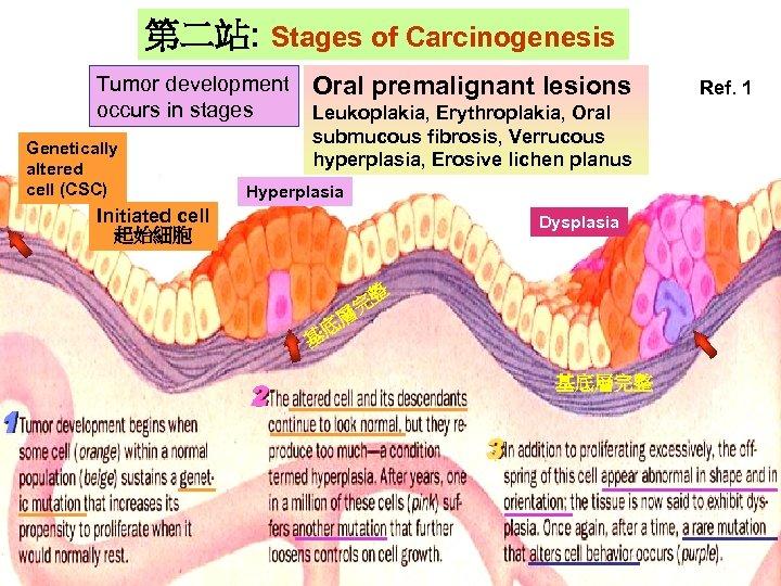 第二站: Stages of Carcinogenesis Tumor development occurs in stages Genetically Gentically altered cell (CSC)