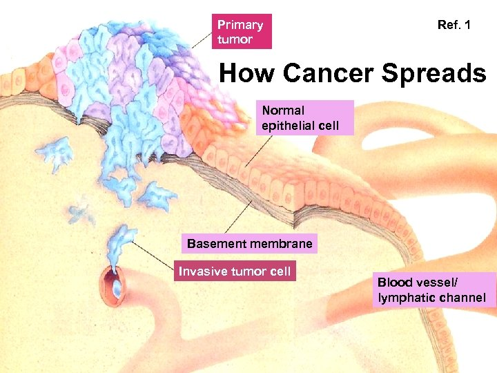 Primary tumor Ref. 1 How Cancer Spreads Normal epithelial cell Basement membrane Invasive tumor
