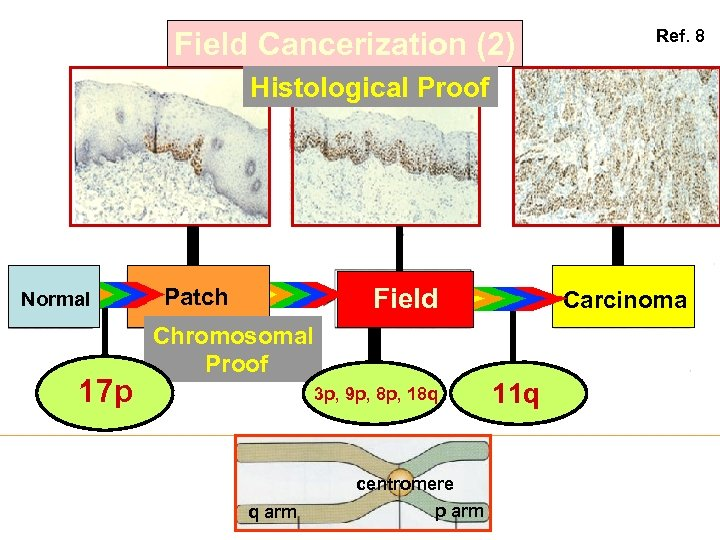Field Cancerization (2) Ref. 8 Histological Proof Normal 17 p Field Patch Carcinoma Chromosomal