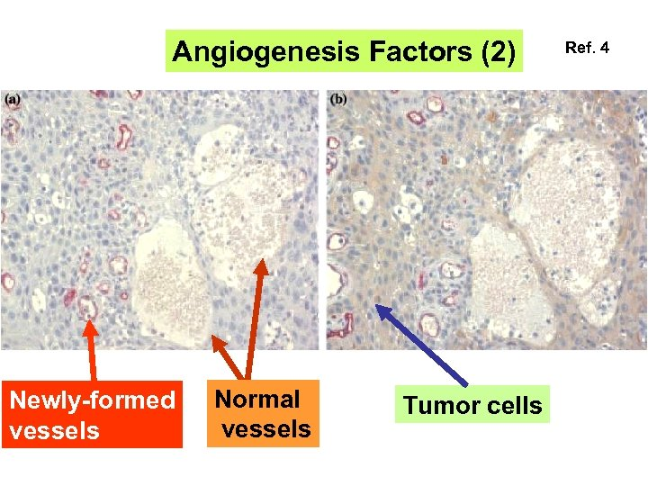 Angiogenesis Factors (2) Newly-formed vessels Normal vessels Tumor cells Ref. 4