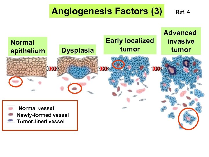 Angiogenesis Factors (3) Normal epithelium Dysplasia Normal vessel Newly-formed vessel Tumor-lined vessel Early localized