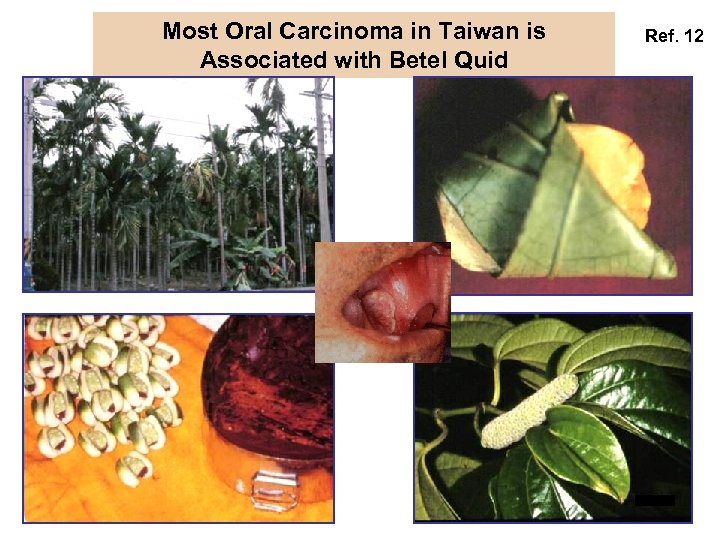 Most Oral Carcinoma in Taiwan is Associated with Betel Quid Ref. 12