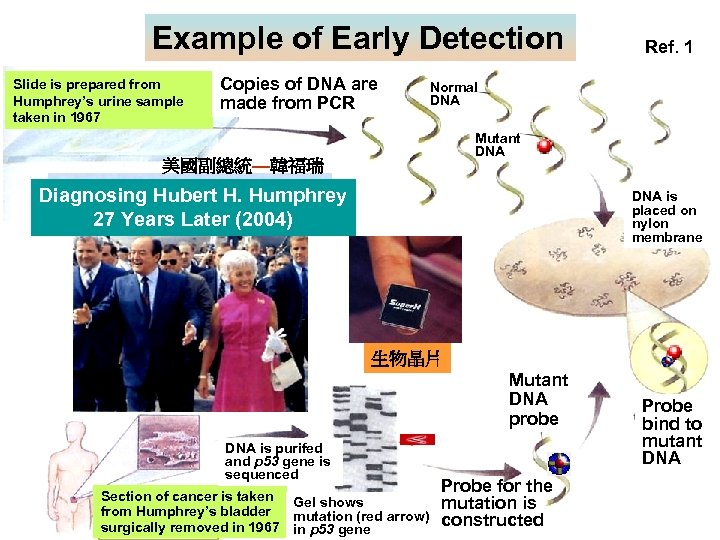 Example of Early Detection Slide is prepared from Humphrey's urine sample taken in 1967