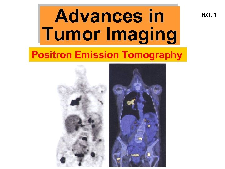 Advances in Tumor Imaging Positron Emission Tomography Ref. 1