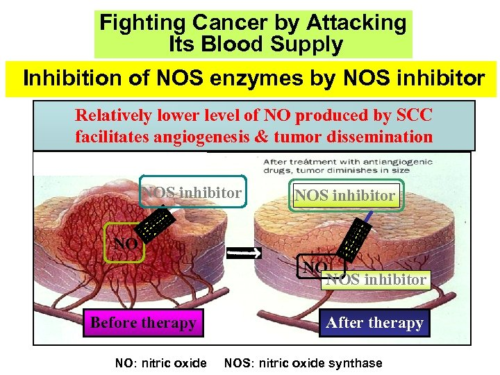 Fighting Cancer by Attacking Its Blood Supply Inhibition of NOS enzymes by NOS inhibitor