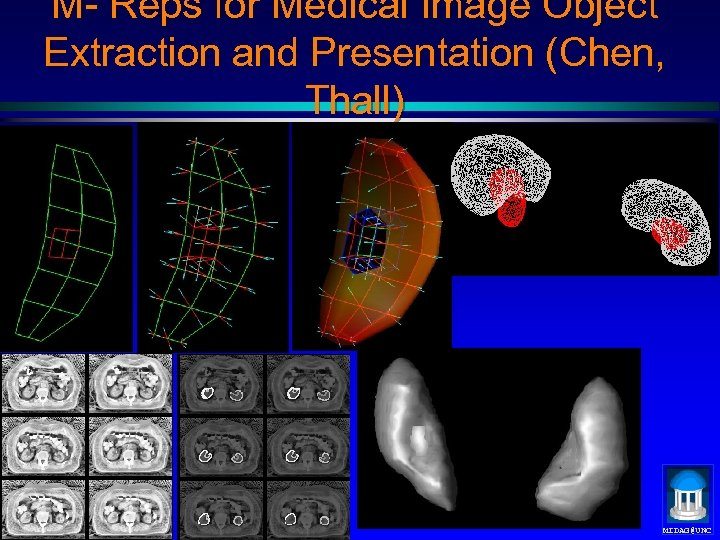 M- Reps for Medical Image Object Extraction and Presentation (Chen, Thall) MIDAG@UNC