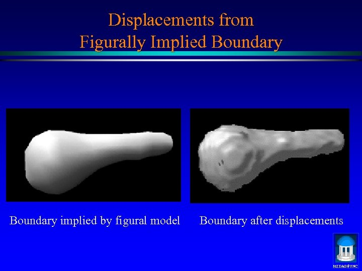 Displacements from Figurally Implied Boundary implied by figural model Boundary after displacements MIDAG@UNC
