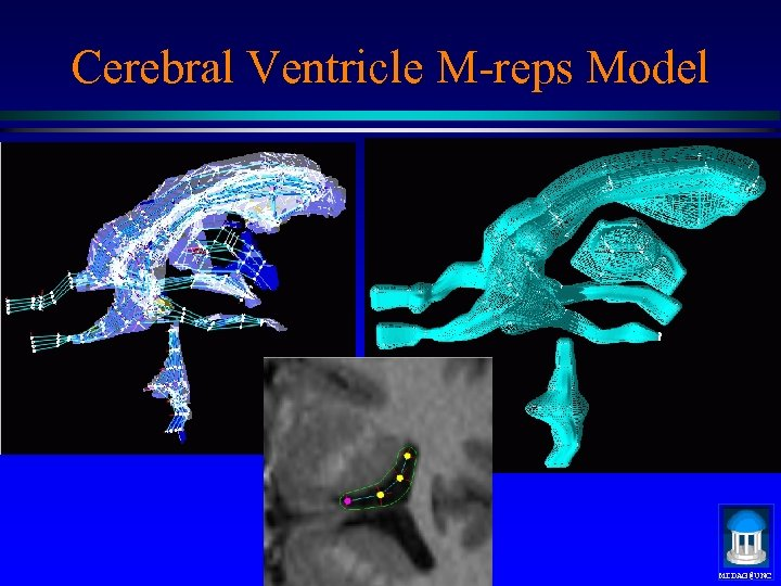 Cerebral Ventricle M-reps Model MIDAG@UNC
