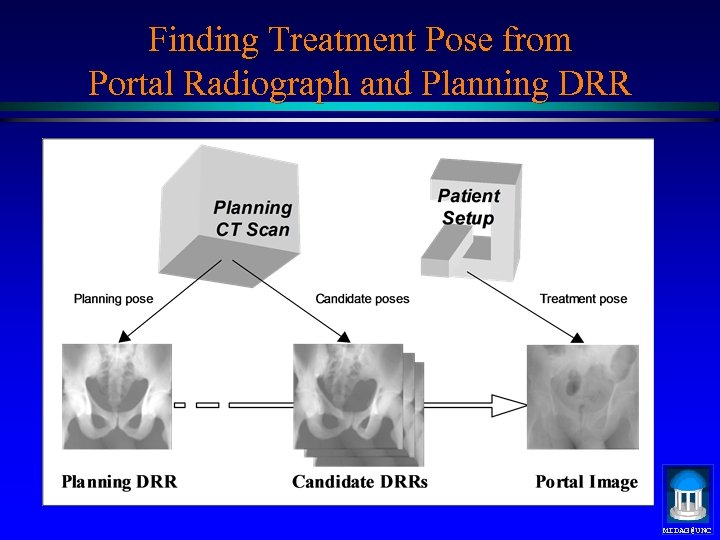 Finding Treatment Pose from Portal Radiograph and Planning DRR MIDAG@UNC