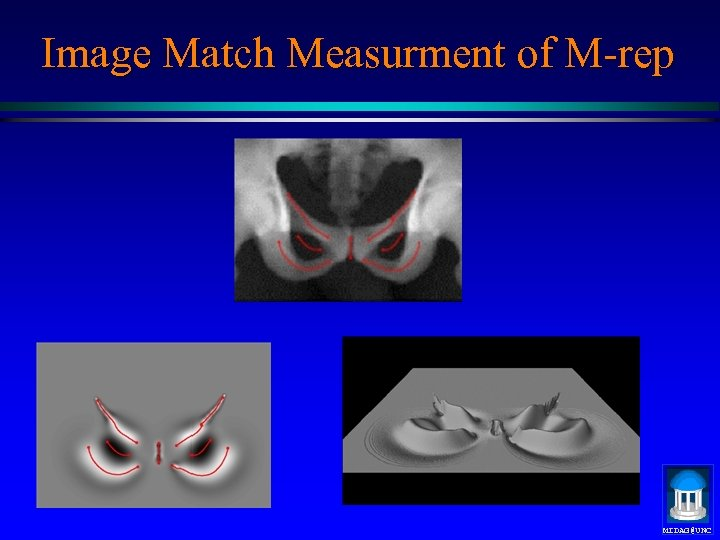 Image Match Measurment of M-rep MIDAG@UNC