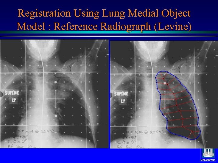 Registration Using Lung Medial Object Model : Reference Radiograph (Levine) Medial nets, positions only