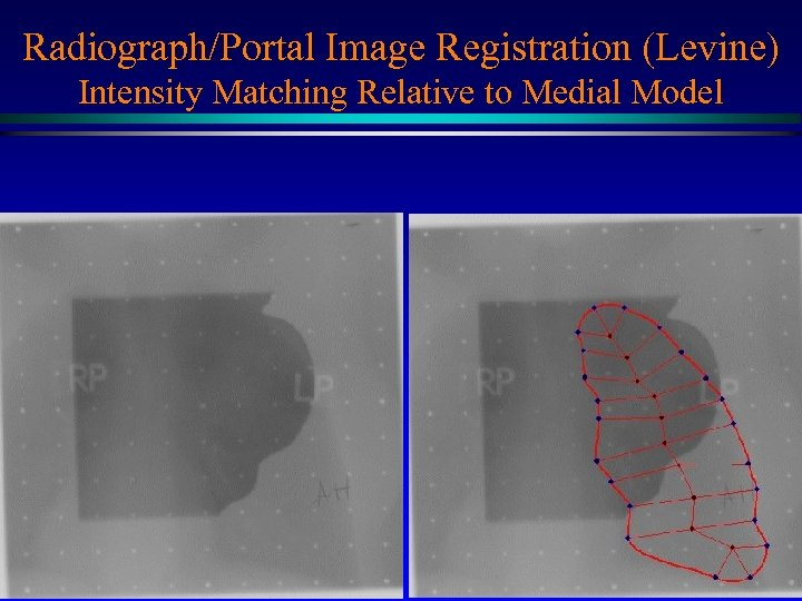 Radiograph/Portal Image Registration (Levine) Intensity Matching Relative to Medial Model Medial net MIDAG@UNC