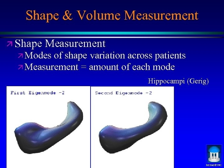 Shape & Volume Measurement ä Shape Measurement ä Modes of shape variation across patients