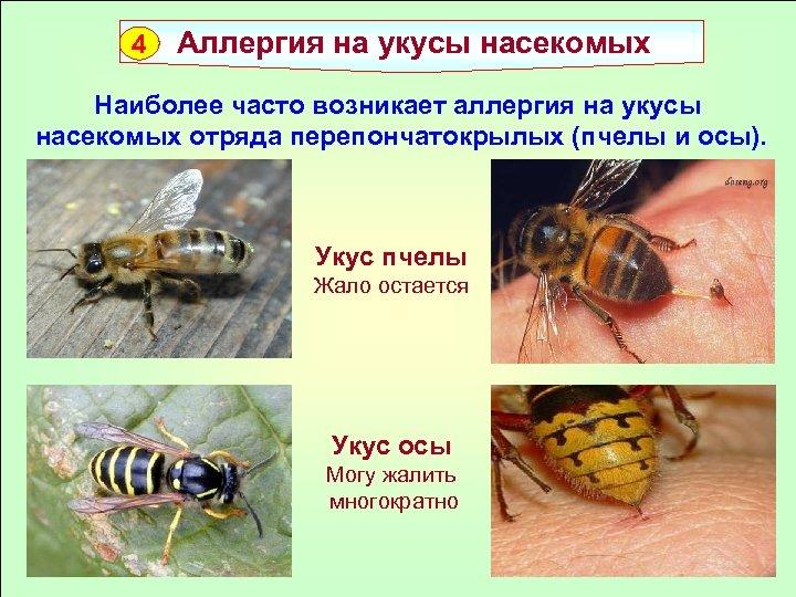 4 Аллергия на укусы насекомых Наиболее часто возникает аллергия на укусы насекомых отряда перепончатокрылых