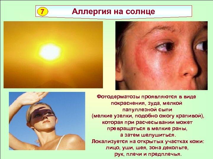 7 Аллергия на солнце Фотодерматозы проявляются в виде покраснения, зуда, мелкой папуллезной сыпи (мелкие