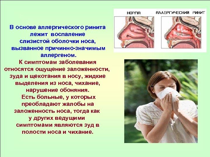 В основе аллергического ринита лежит воспаление слизистой оболочки носа, вызванное причинно-значимым аллергеном. К симптомам