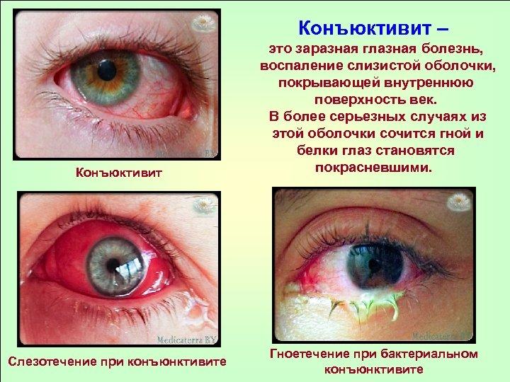 Конъюктивит – Конъюктивит Слезотечение при конъюнктивите это заразная глазная болезнь, воспаление слизистой оболочки, покрывающей