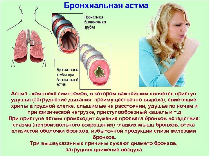 Бронхиальная астма Астма - комплекс симптомов, в котором важнейшим является приступ удушья (затруднение дыхания,