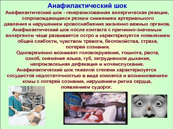Анафилактический шок - генерализованная аллергическая реакция, сопровождающаяся резким снижением артериального давления и нарушением кровоснабжения