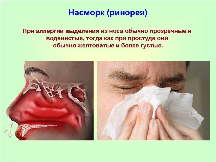 Насморк (ринорея) При аллергии выделения из носа обычно прозрачные и водянистые, тогда как при