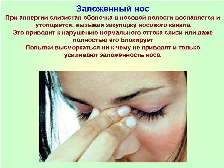 Заложенный нос При аллергии слизистая оболочка в носовой полости воспаляется и утолщается, вызывая закупорку