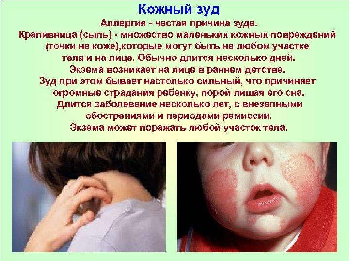 Кожный зуд Аллергия - частая причина зуда. Крапивница (сыпь) - множество маленьких кожных повреждений