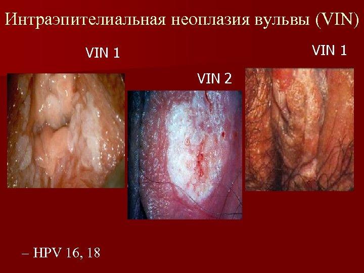 Интраэпителиальная неоплазия вульвы (VIN) VIN 1 VIN 2 – HPV 16, 18