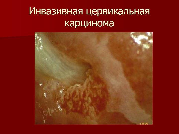 Инвазивная цервикальная карцинома