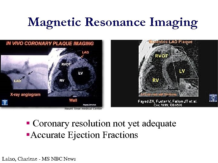 Magnetic Resonance Imaging § Coronary resolution not yet adequate §Accurate Ejection Fractions Laino, Charlene
