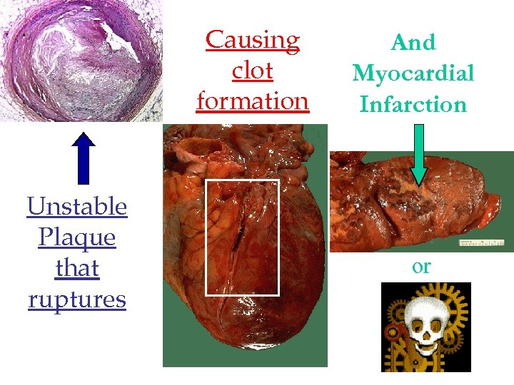 Causing clot formation Unstable Plaque that ruptures And Myocardial Infarction or