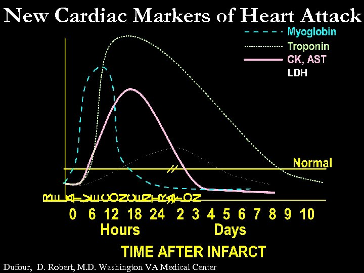 New Cardiac Markers of Heart Attack Dufour, D. Robert, M. D. Washington VA Medical