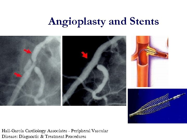 Angioplasty and Stents Hall-Garcia Cardiology Associates - Peripheral Vascular Disease: Diagnostic & Treatment Procedures