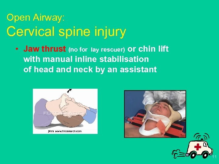 Open Airway: Cervical spine injury • Jaw thrust (no for lay rescuer) or chin