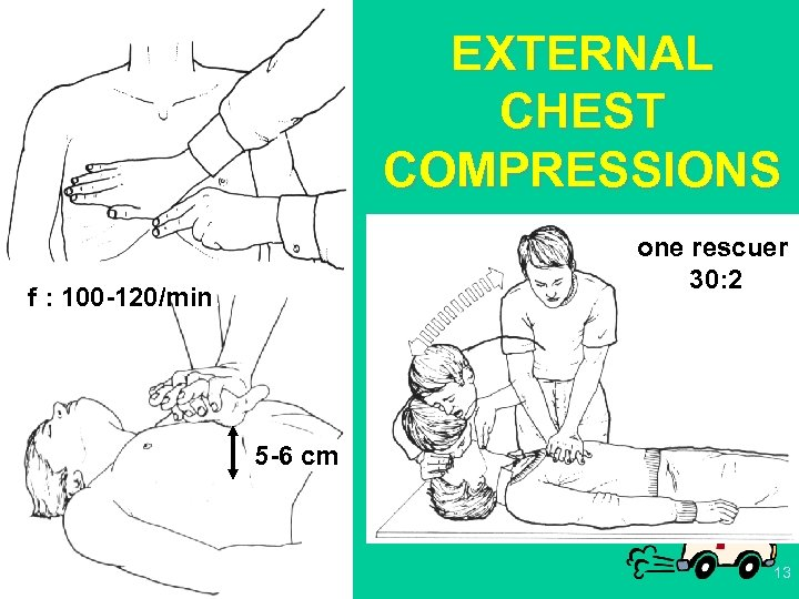 EXTERNAL CHEST COMPRESSIONS one rescuer 30: 2 f : 100 -120/min. 5 -6 cm