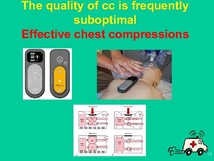 The quality of cc is frequently suboptimal Effective chest compressions 14