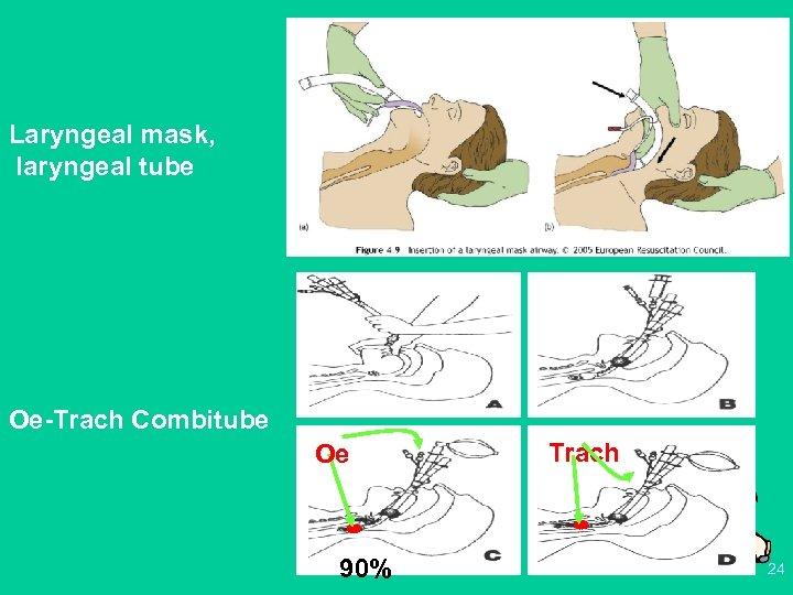 Laryngeal mask, laryngeal tube Oe-Trach Combitube Oe 90% Trach 24
